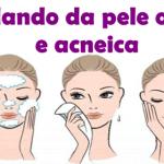 Pele oleosa e acneica: Como cuidar